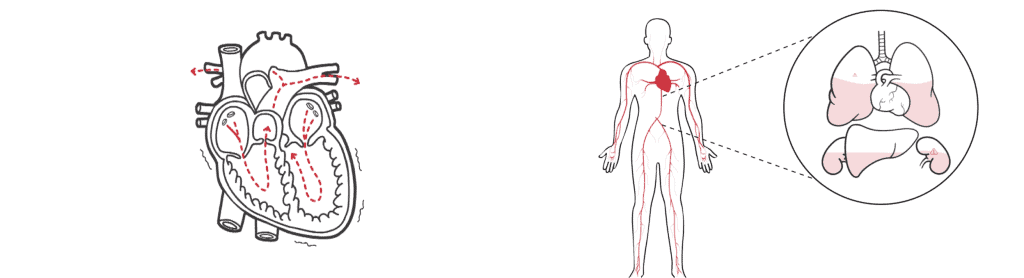 example of medical whiteboard animation